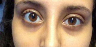 jessica greaney's eye 3