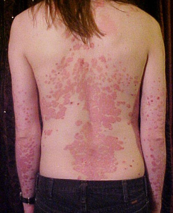 Psoriasis_on_back
