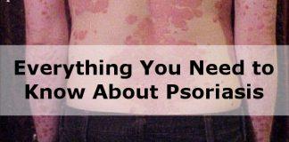 psoriasis back