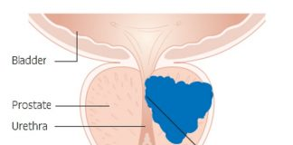 Diagram_showing_prostate_cancer_pressing_on_the_urethra